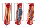 Picture of a coronary stent
